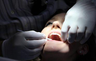 Odsłonięte korzenie zębów- objawy i leczenie